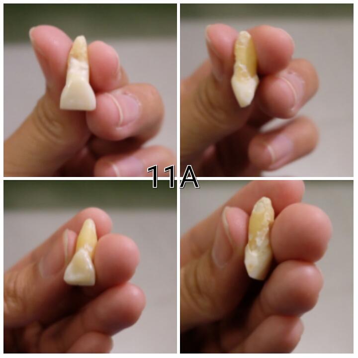 Jual gigi incisive/seri 11A untuk praktek kedokteran gigi
